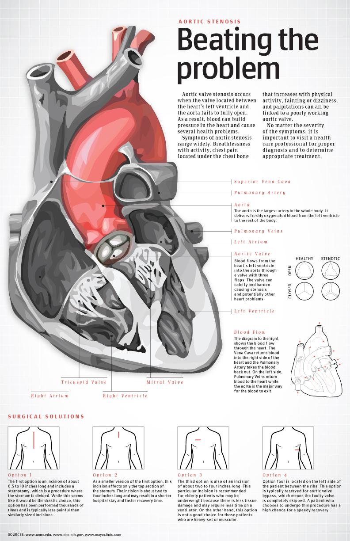 aortic-stencil